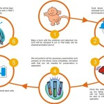 Umbilical-Cord Stem Cell Banking Procedure Cost Pros & Cons