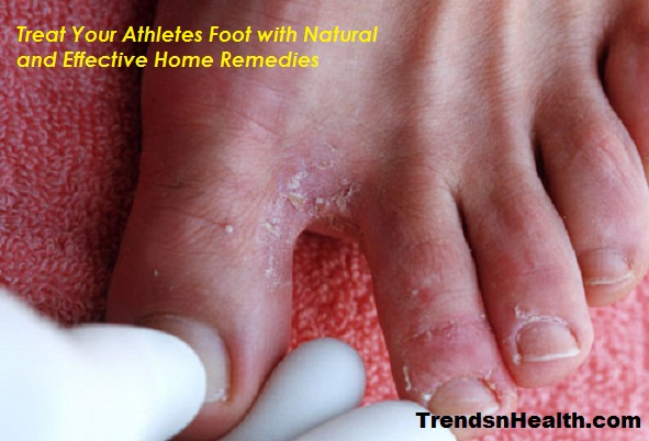 athlete s book of home remedies review