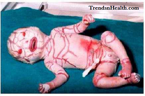 10 Babies Born with Rare and Bizarre Defect, Disorder or Disease