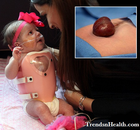 cute baby with heart outside chest, operated, surgery