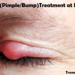 What to do to treat Eyelid Pimple/ Bump (Eye Stye)