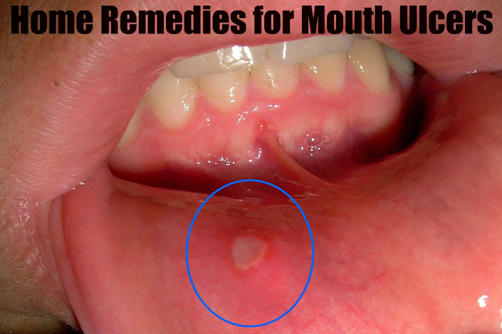 Mouth Ulcers Symptoms