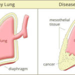 What is Mesothelioma? Tips to Prevent and How to Get Proper Treatment