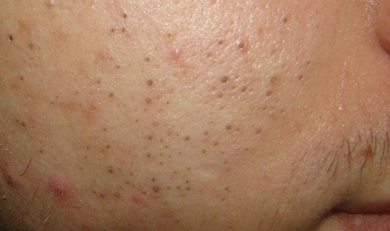 Acne Blackheads