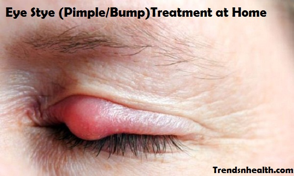 eye stye treatment, pimple on eyelid, bump on eye lid, red bump on eye