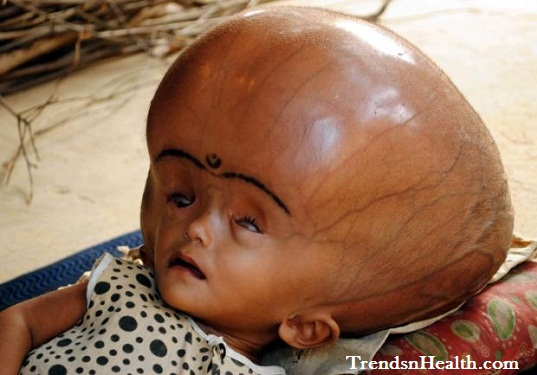 10 Babies Born with Rare and Bizarre Defect, Disorder or ...