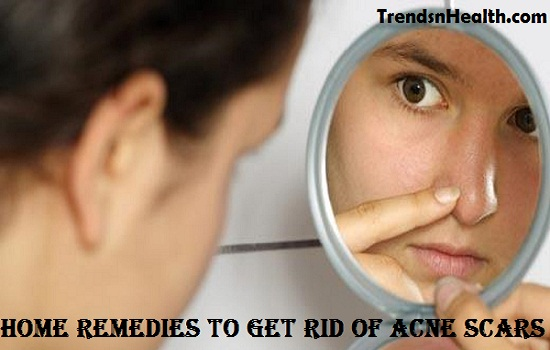acne scars home remedies homemade remedies for acne scars scar removal remedy get rid of acne scars erase acne scars