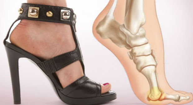 high heel damage bones