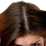 get rid of dandruff with natural home remedies