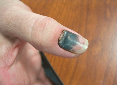 nail injury black and blue